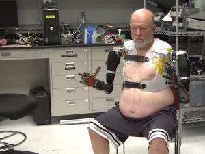cummins - prosthetic arms