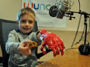 cummins - prosthetic hand